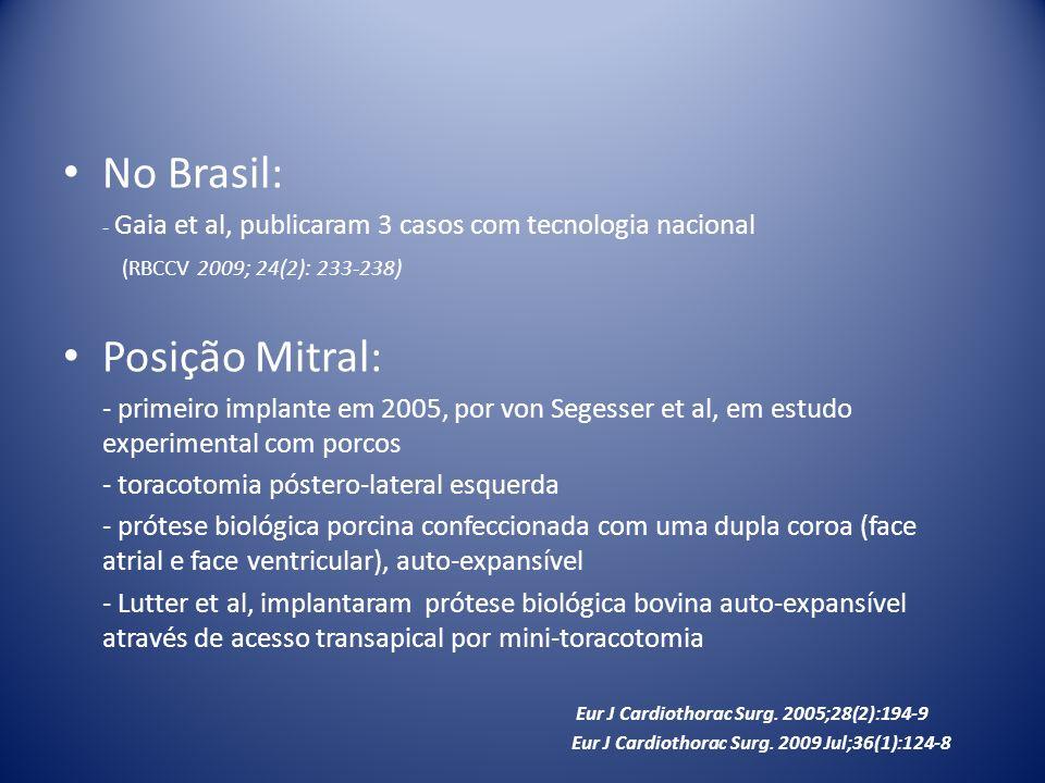 No Brasil: Posição Mitral: (RBCCV 2009; 24(2): 233-238)