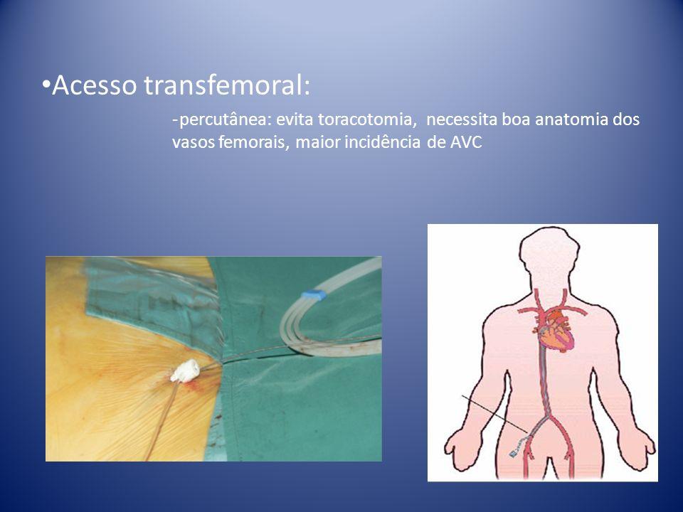 Acesso transfemoral: percutânea: evita toracotomia, necessita boa anatomia dos vasos femorais, maior incidência de AVC.