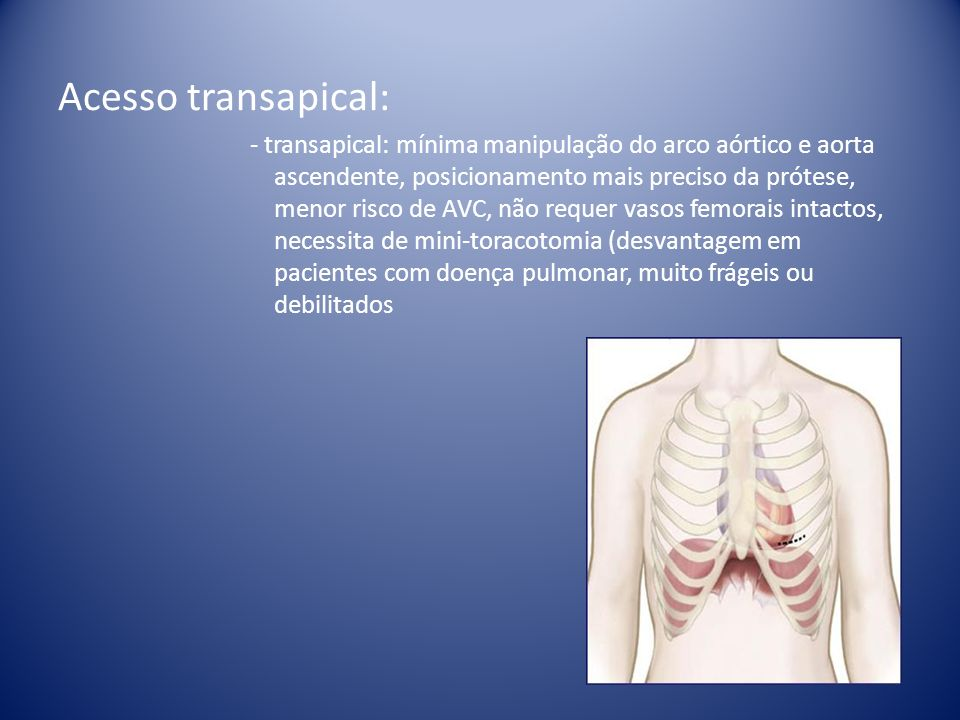 Acesso transapical: