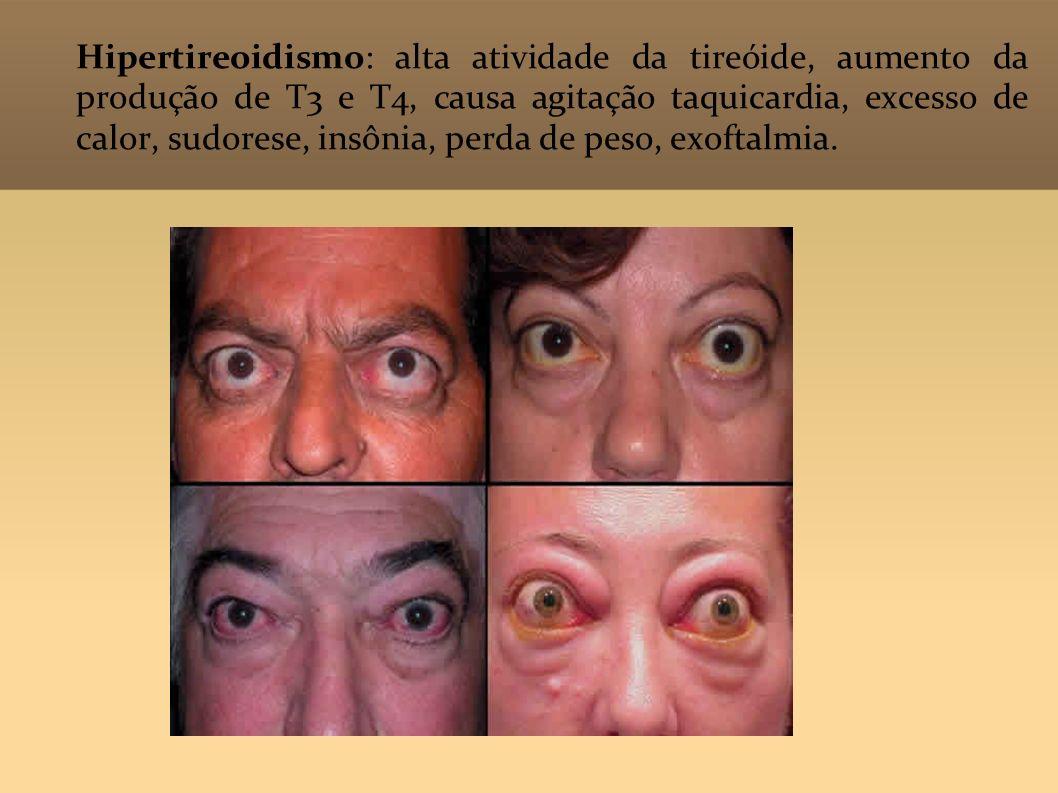 Hipertireoidismo: alta atividade da tireóide, aumento da produção de T3 e T4, causa agitação taquicardia, excesso de calor, sudorese, insônia, perda de peso, exoftalmia.