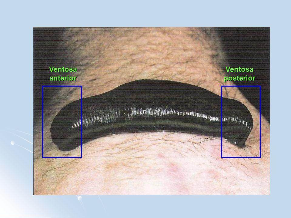 Ventosa anterior Ventosa posterior