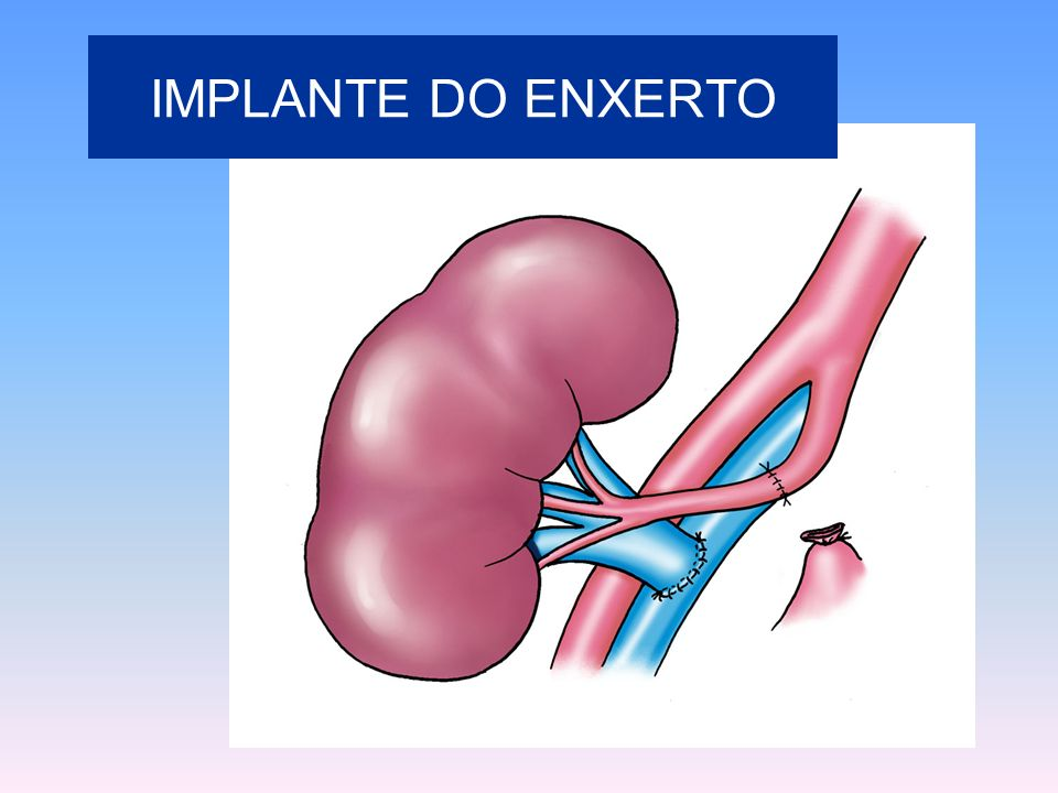 IMPLANTE DO ENXERTO