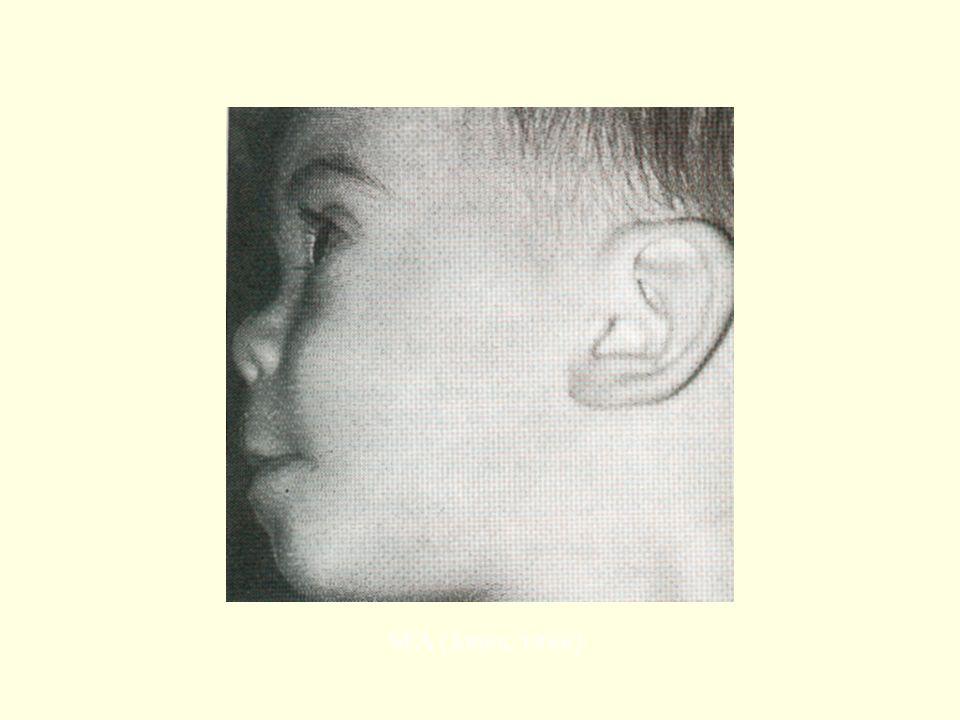 SFA (Jones, 1988)