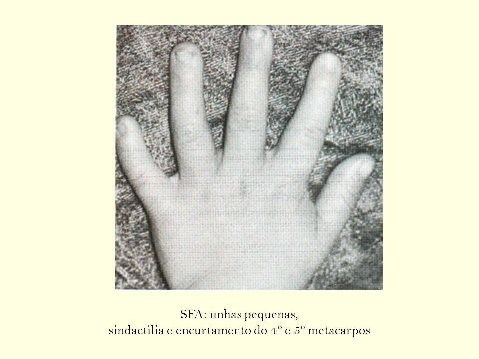 sindactilia e encurtamento do 4º e 5º metacarpos
