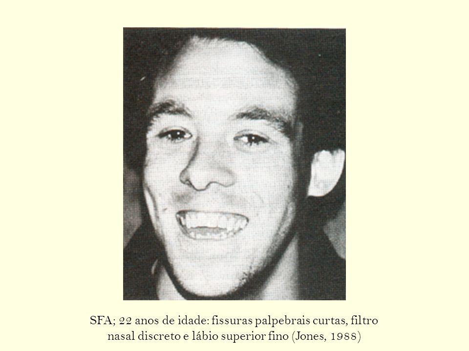 SFA; 22 anos de idade: fissuras palpebrais curtas, filtro