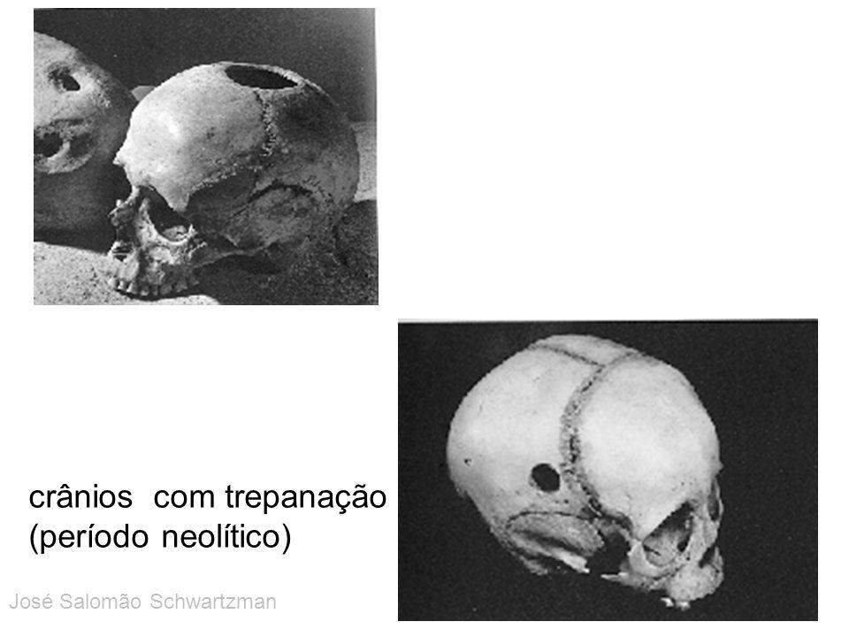 crânios com trepanação (período neolítico)