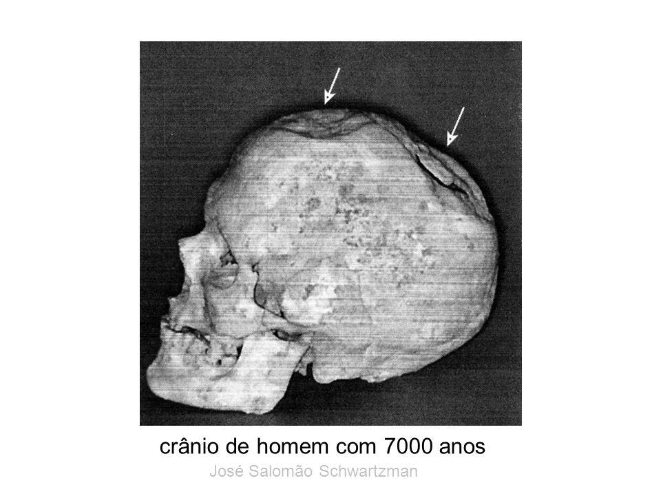 crânio de homem com 7000 anos
