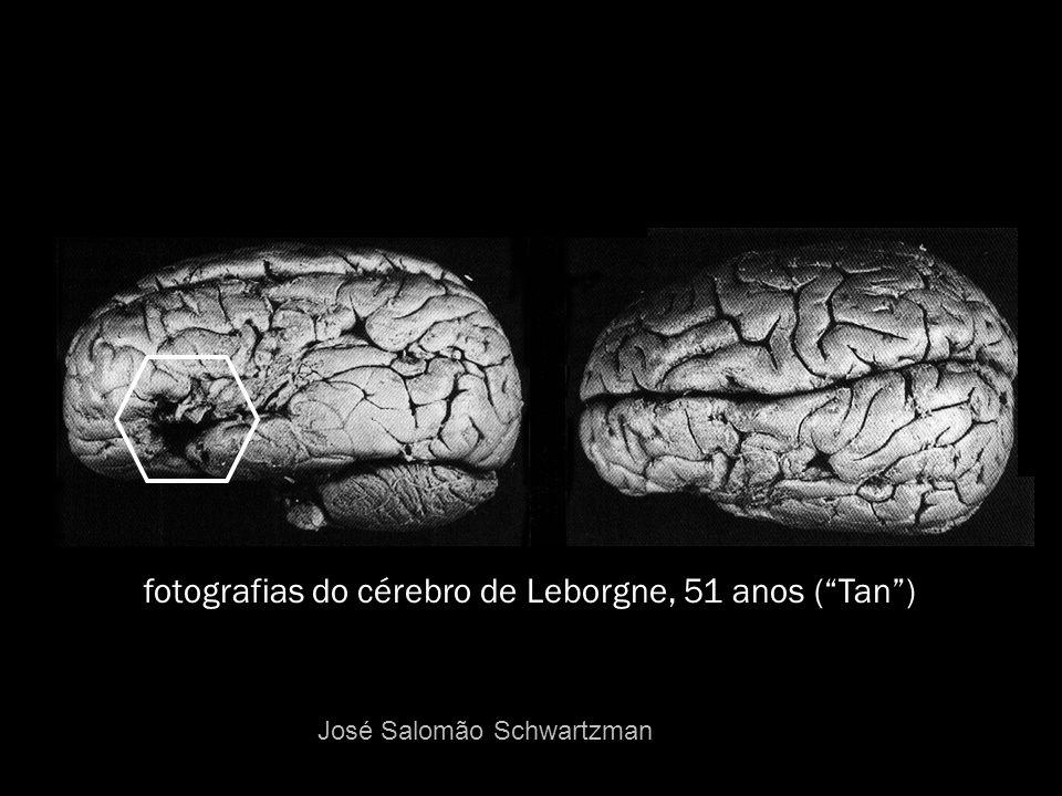 fotografias do cérebro de Leborgne, 51 anos ( Tan )