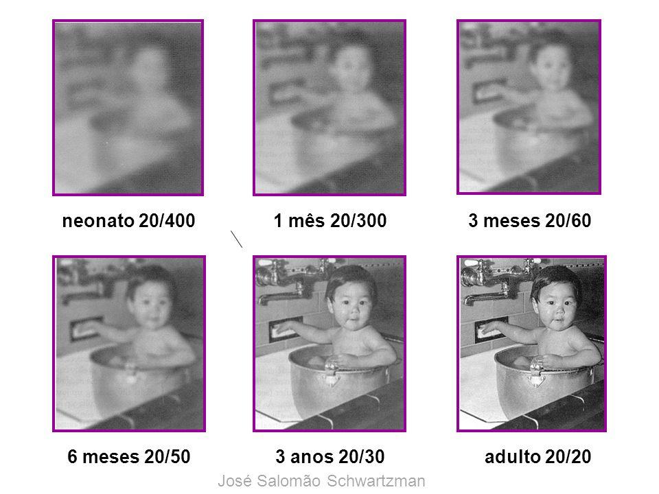 neonato 20/400 1 mês 20/300 3 meses 20/60 6 meses 20/50 3 anos 20/30