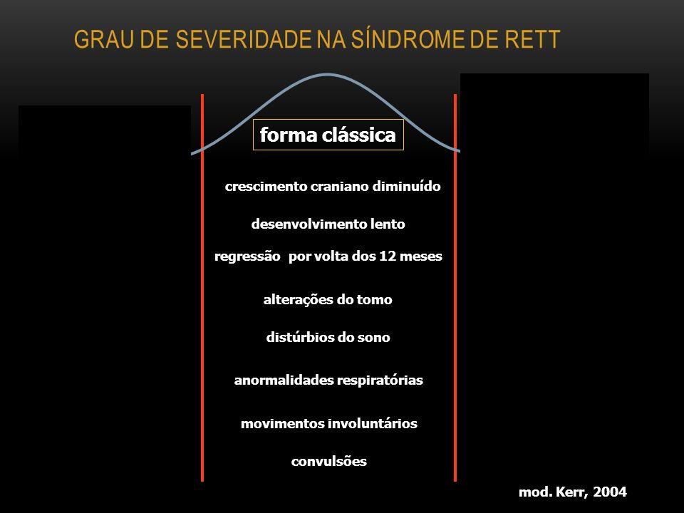 Grau de severidade na síndrome de Rett