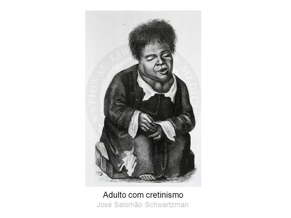 Adulto com cretinismo José Salomão Schwartzman
