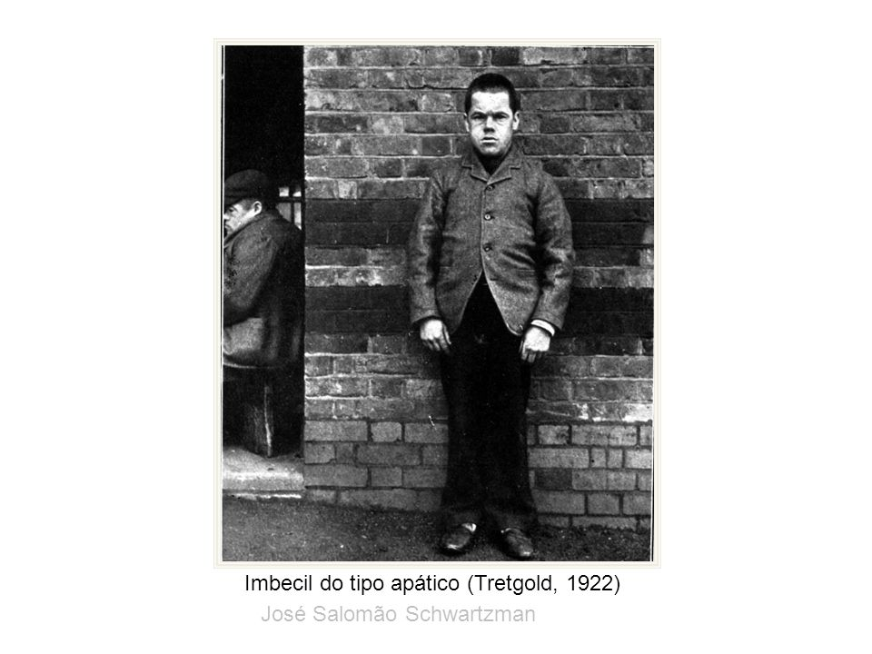 Imbecil do tipo apático (Tretgold, 1922)