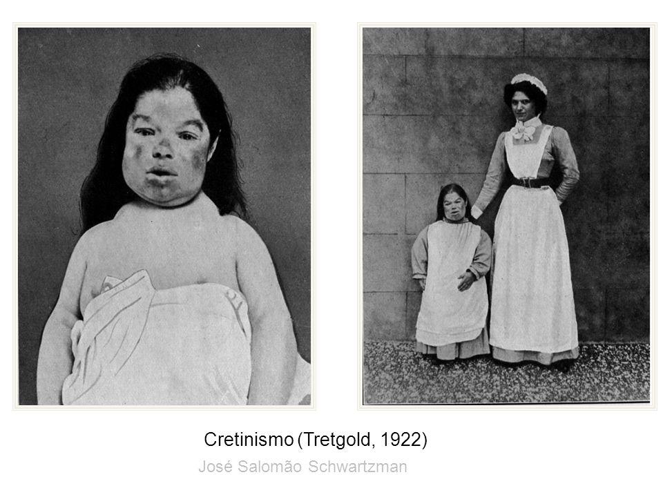Cretinismo (Tretgold, 1922)