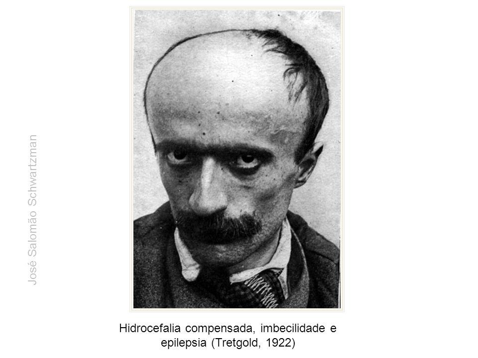 Hidrocefalia compensada, imbecilidade e