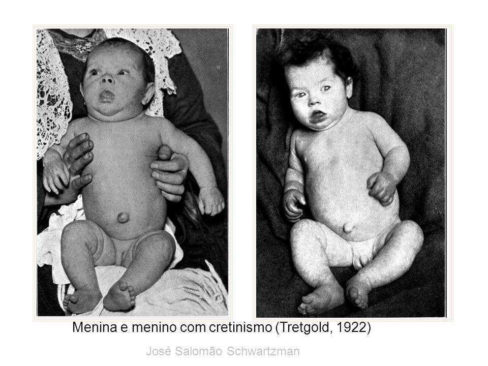 Menina e menino com cretinismo (Tretgold, 1922)