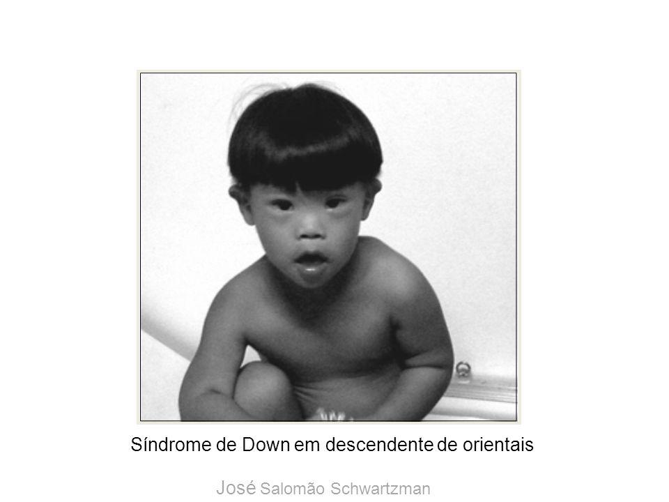 Síndrome de Down em descendente de orientais