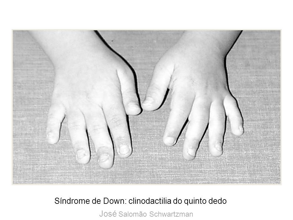Síndrome de Down: clinodactilia do quinto dedo
