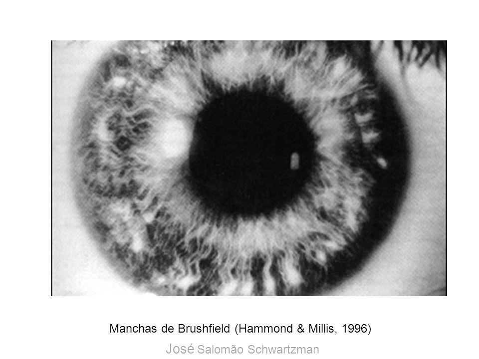 Manchas de Brushfield (Hammond & Millis, 1996)