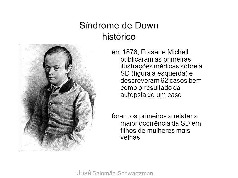 Síndrome de Down histórico