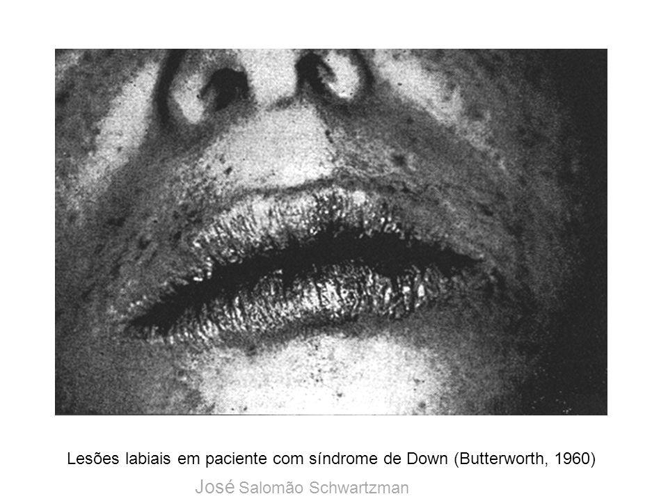 Lesões labiais em paciente com síndrome de Down (Butterworth, 1960)