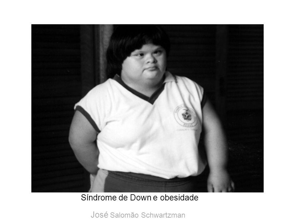 Síndrome de Down e obesidade