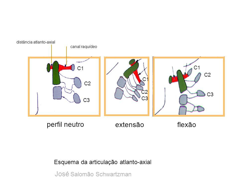 distância atlanto-axial
