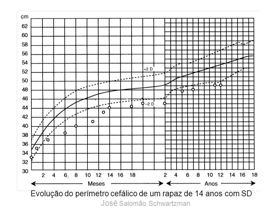 Evolução do perímetro cefálico de um rapaz de 14 anos com SD