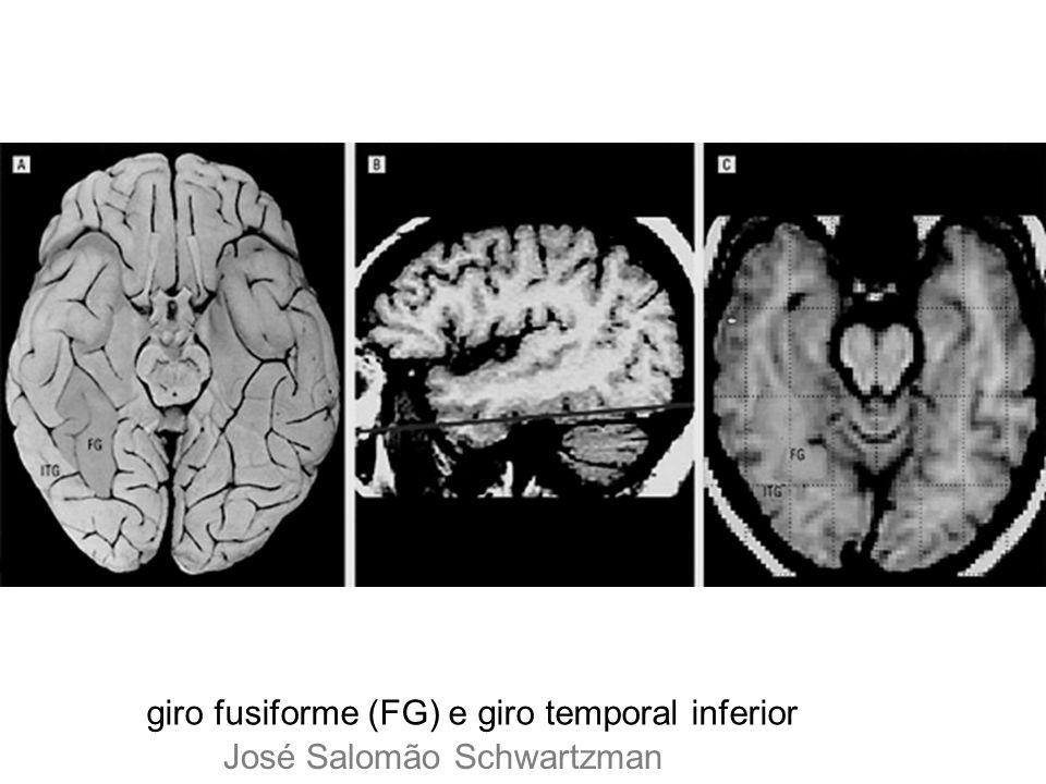 giro fusiforme (FG) e giro temporal inferior José Salomão Schwartzman