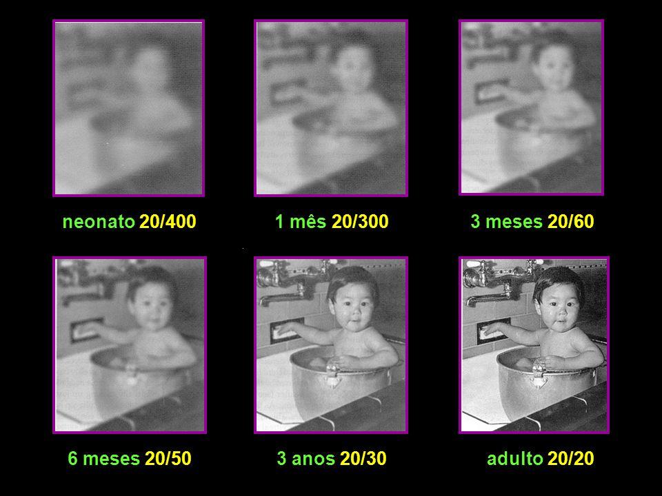 neonato 20/400 1 mês 20/300 3 meses 20/60 6 meses 20/50 3 anos 20/30 adulto 20/20