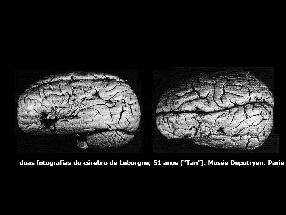 duas fotografias do cérebro de Leborgne, 51 anos ( Tan )