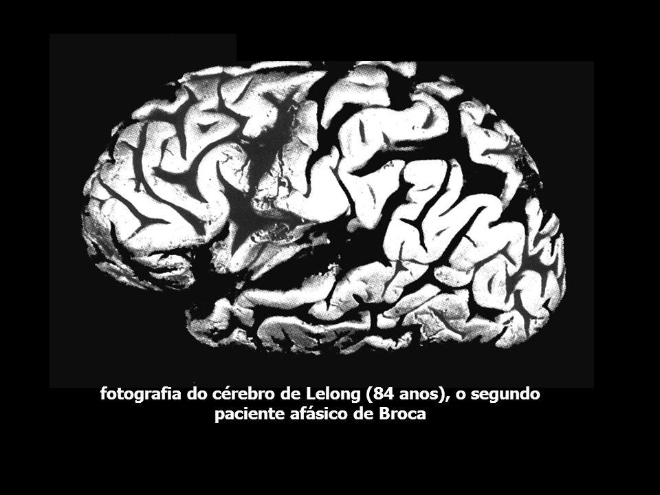 fotografia do cérebro de Lelong (84 anos), o segundo