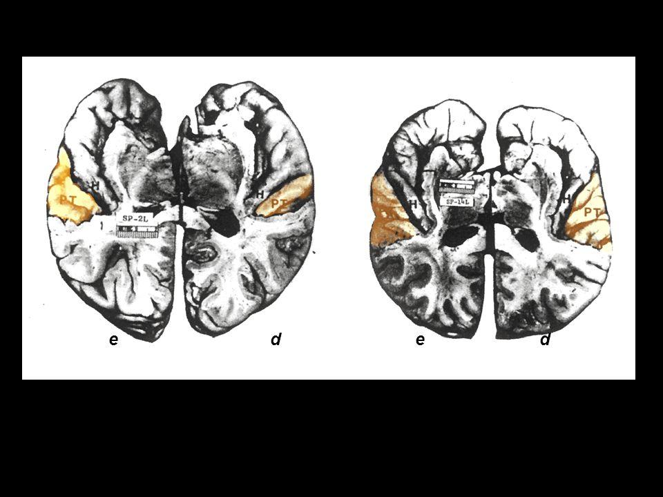 e d e d assimetria (habitual) do planum temporale simétrico planum temporale