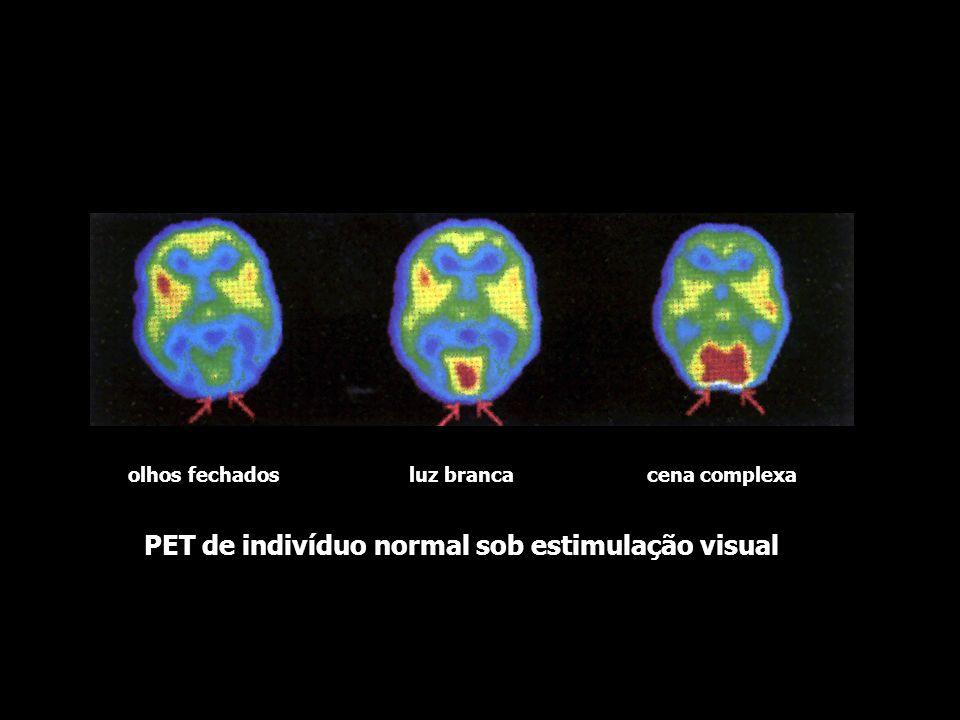PET de indivíduo normal sob estimulação visual