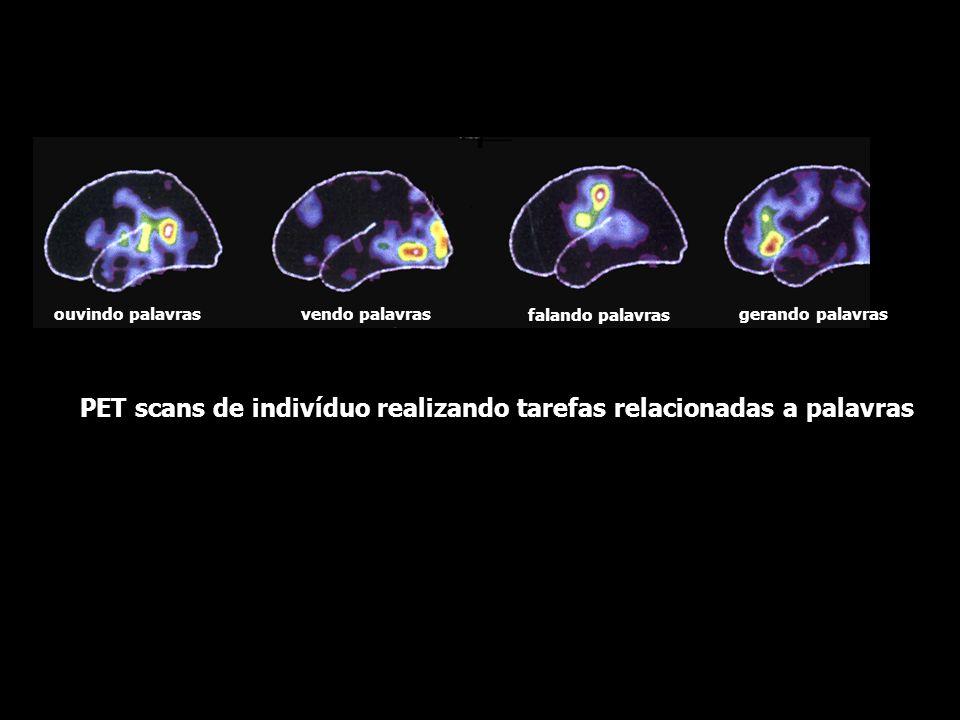 PET scans de indivíduo realizando tarefas relacionadas a palavras
