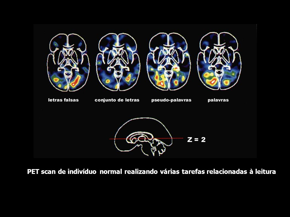 PET scan de indivíduo normal realizando várias tarefas relacionadas à leitura