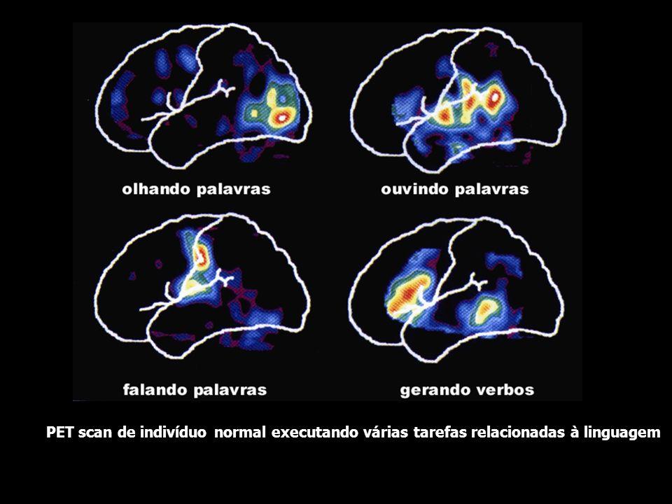 PET scan de indivíduo normal executando várias tarefas relacionadas à linguagem
