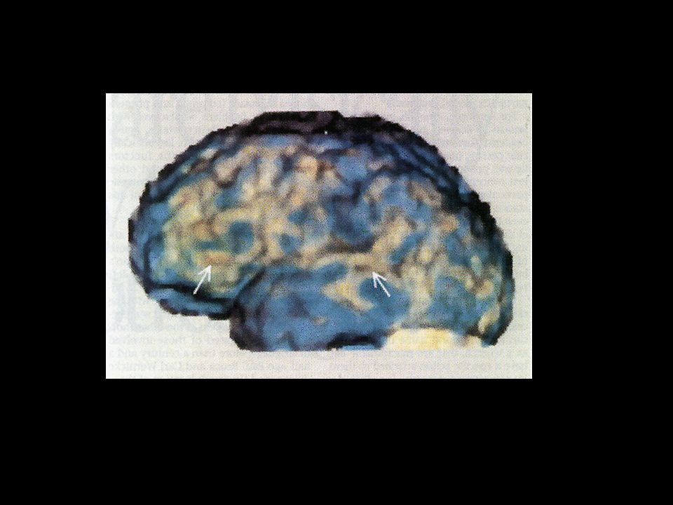 PET scan de indivíduo realizando uma tarefa de nomeação