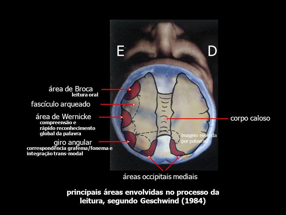 E D área de Broca fascículo arqueado área de Wernicke corpo caloso