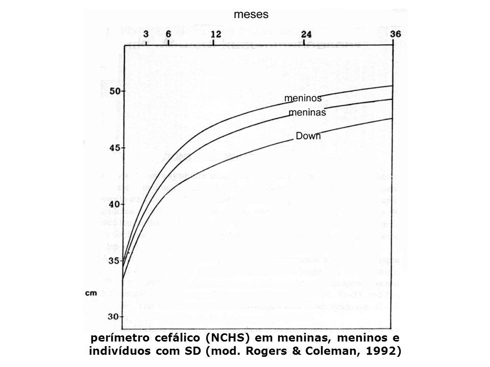 perímetro cefálico (NCHS) em meninas, meninos e