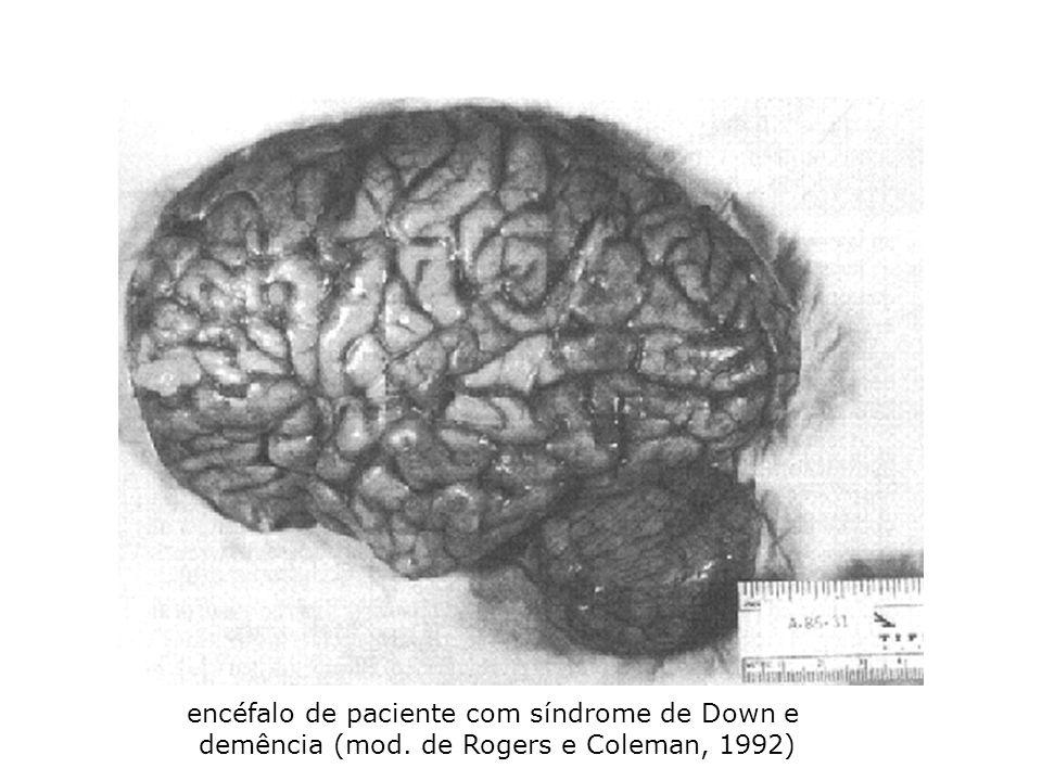 encéfalo de paciente com síndrome de Down e