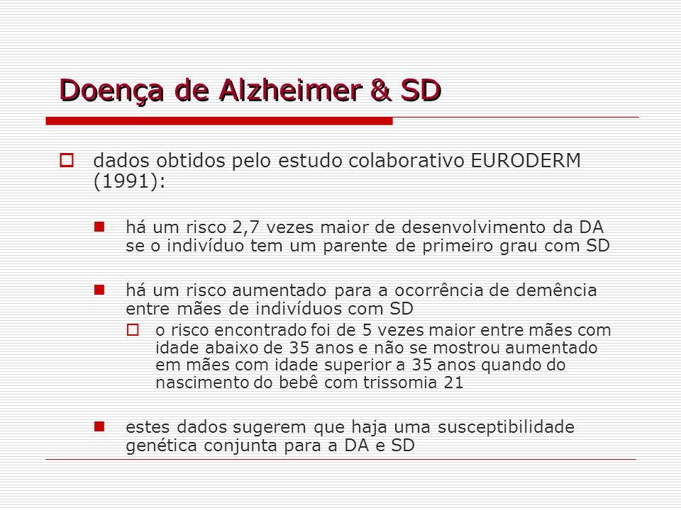 Doença de Alzheimer & SD
