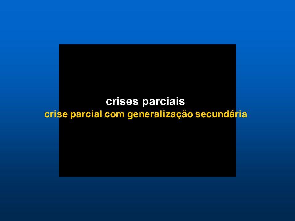 crise parcial com generalização secundária
