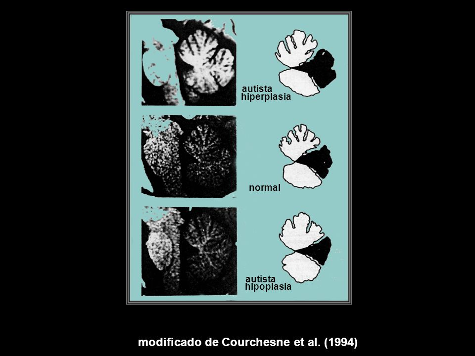 modificado de Courchesne et al. (1994)