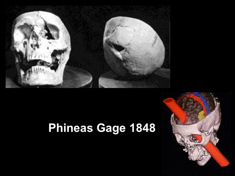 Phineas Gage 1848