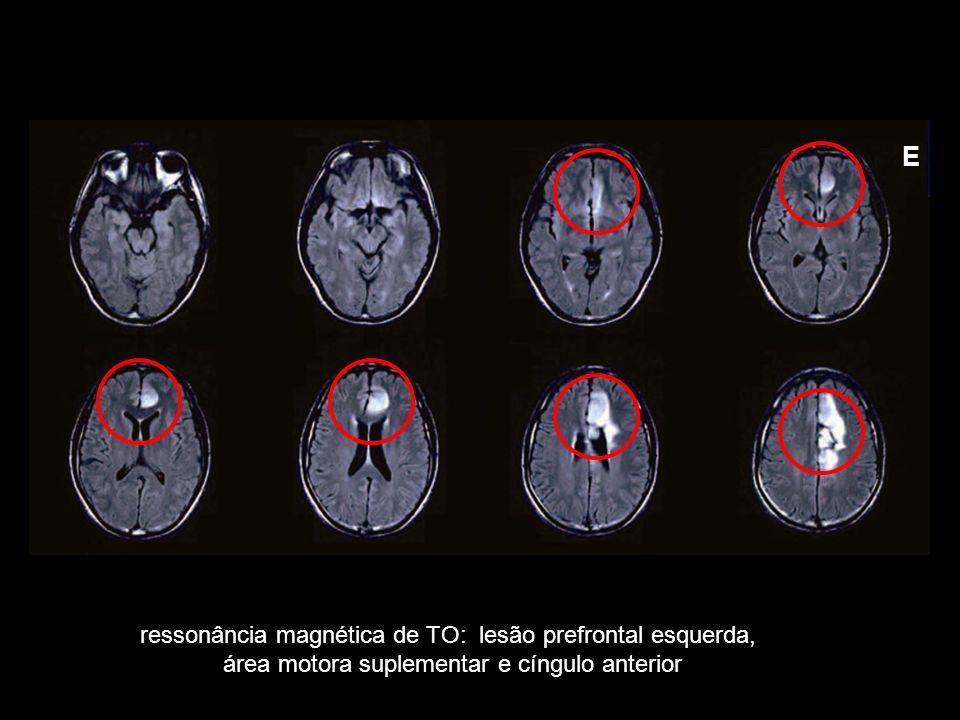 E ressonância magnética de TO: lesão prefrontal esquerda,