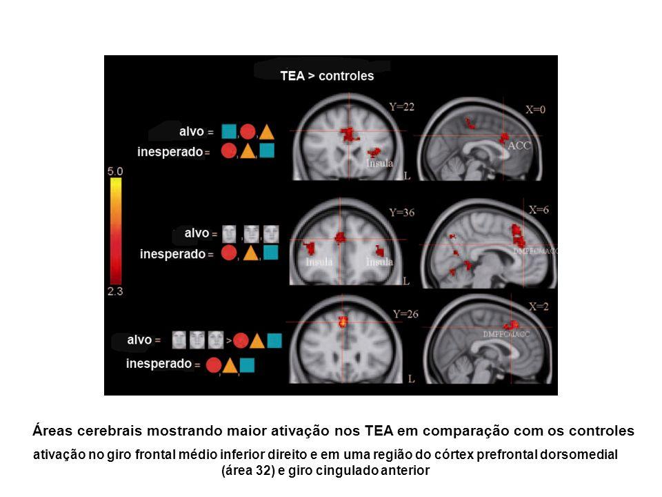 Áreas cerebrais mostrando maior ativação nos TEA em comparação com os controles