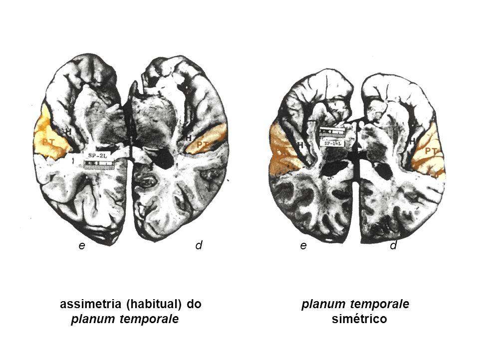 e d e d assimetria (habitual) do planum temporale planum temporale simétrico
