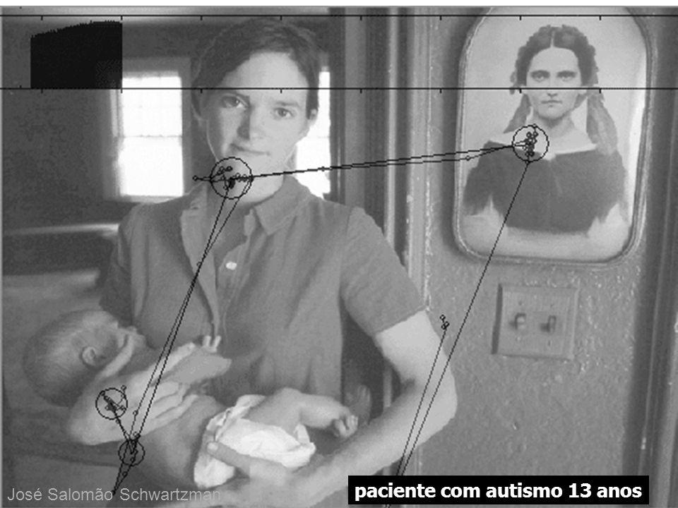 paciente com autismo 13 anos