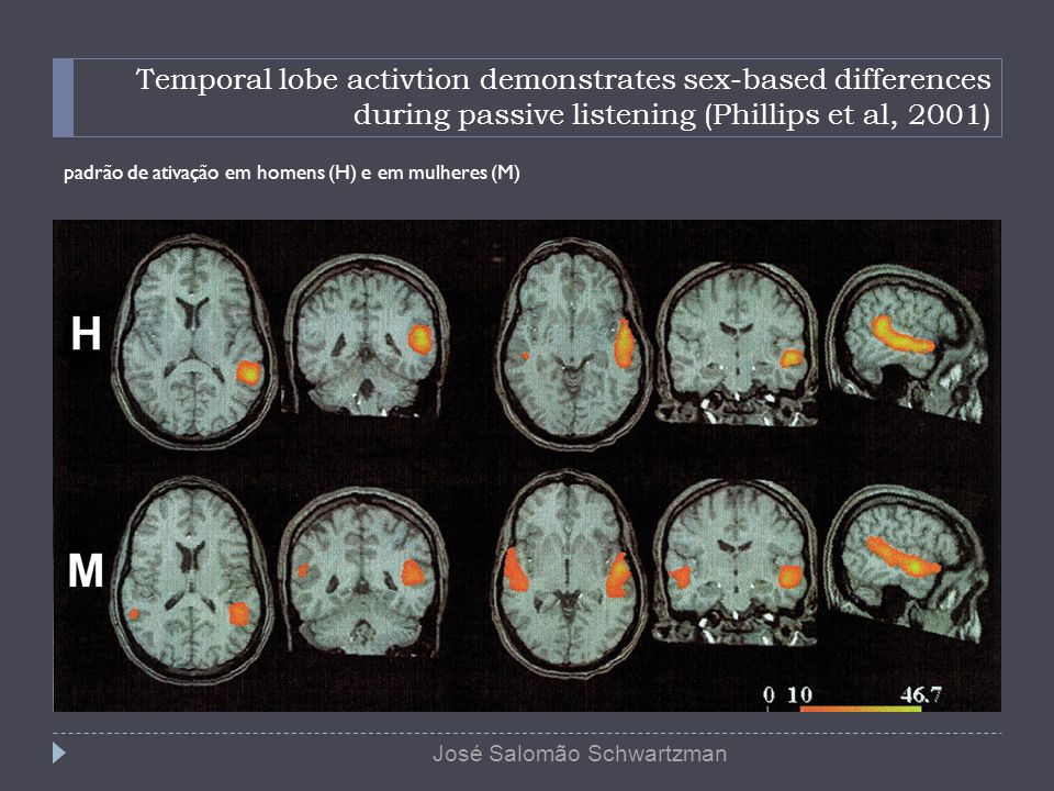 Temporal lobe activtion demonstrates sex-based differences during passive listening (Phillips et al, 2001)