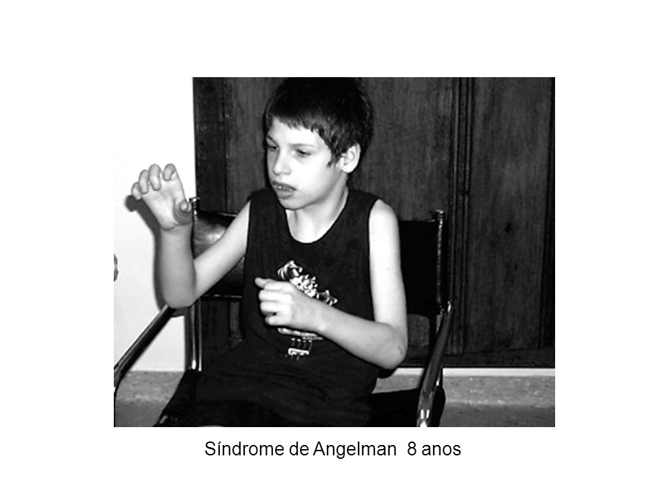 Síndrome de Angelman 8 anos